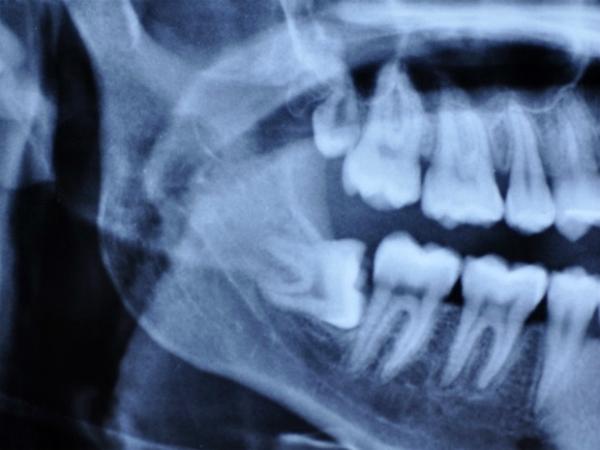 20 Yaş Dişlerinin Çekilmesi Gereken Durumlar