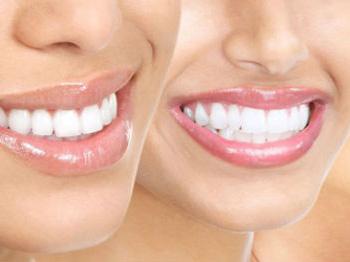 Diş Hekimliğinde Ozon Tedavisi