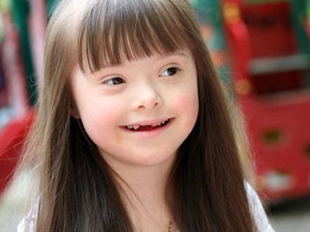 Down Sendromlu Çocuklarda Ağız ve Diş Sağlığı